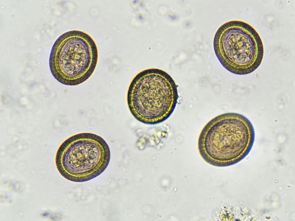 tapeworm eggs under microscope